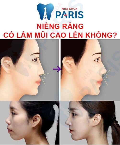 niềng răng có giúp mũi cao hơn không