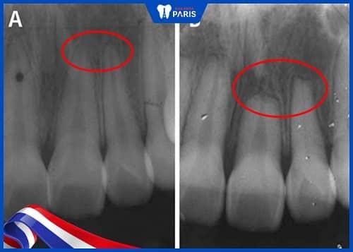 răng yếu sau khi niềng do tiêu biến chân răng