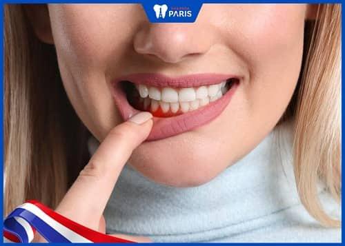 niềng răng khi mang thai dễ gây viêm nướu