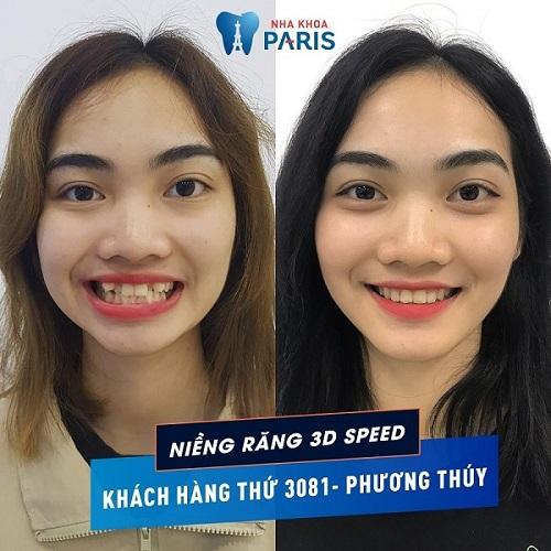trước và sau khi niềng răng khểnh tại Nha Khoa Paris