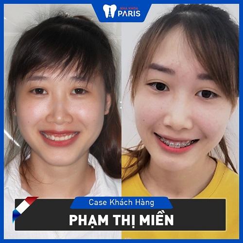 niềng răng hô trước và sau