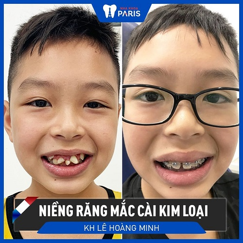 răng đẹp hơn trước và sau khi chỉnh nha