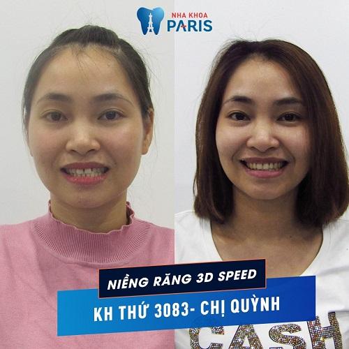 trước và sau khi niềng răng thưa của chị quỳnh
