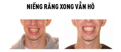 niềng răng xong bị hô nặng hơn