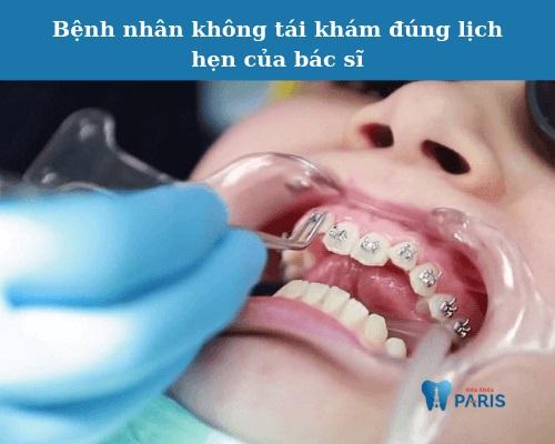 niềng răng xong có đẹp không