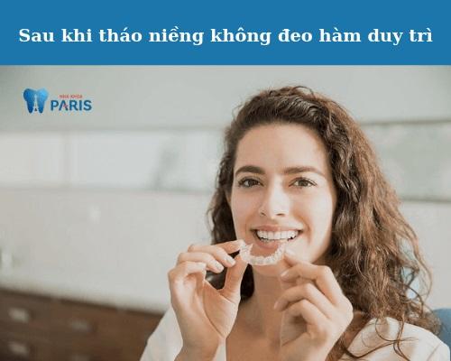 lý do niềng răng xong xấu hơn