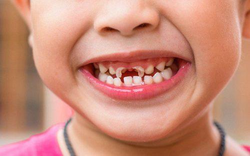 răng sữa của bé bị mủn
