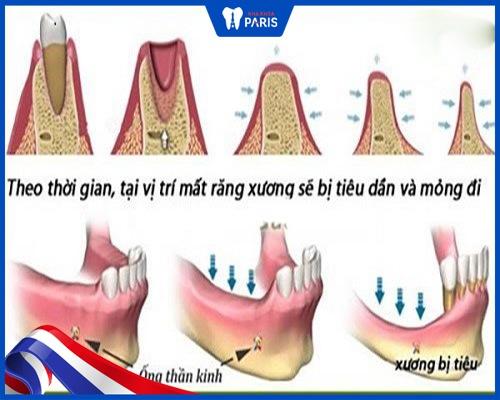 tác hại của việc nhổ răng số 4