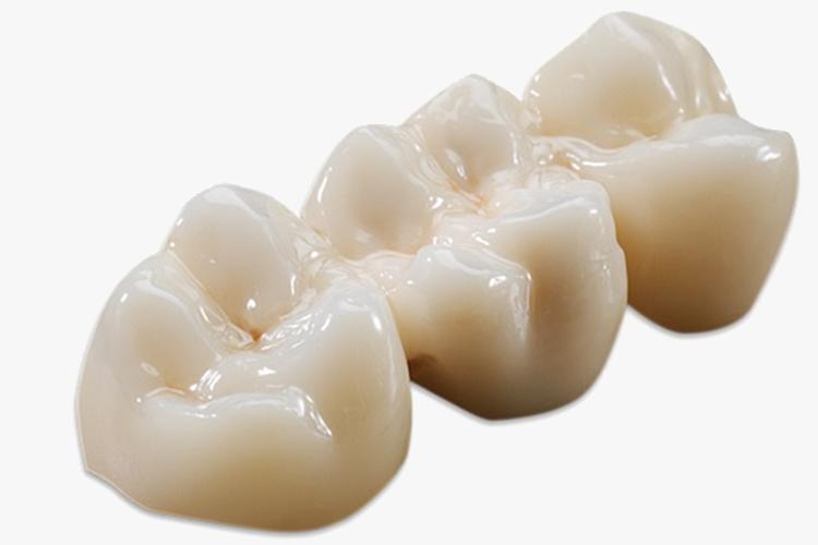răng sứ cercon ht giá bao nhiêu