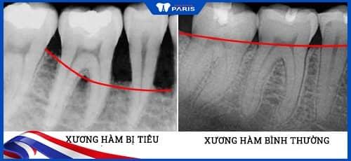 niềng răng làm răng yếu đi do tiêu xương hàm