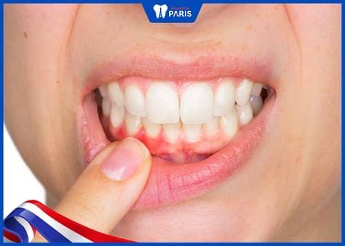 răng yếu sau niềng do bệnh lý răng miệng
