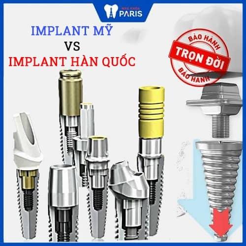 so sánh implant hàn quốc với mỹ