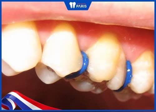 thun tách kẽ răng là gì