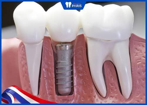 dấu hiệu của tiêu xương răng