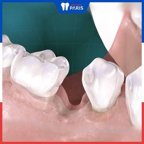 tiêu xương răng
