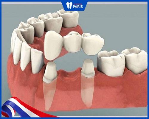 Trồng răng cho người lớn tuổi với cầu răng sứ