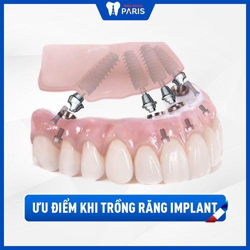Lý do nên trồng răng Implant cho người già