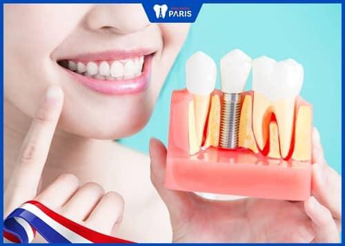trồng răng implant có ảnh hưởng gì không