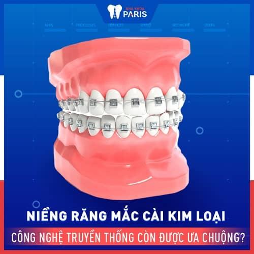 có nên dùng niềng răng kim loại không