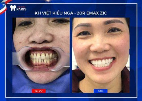 răng sứ có mài được không