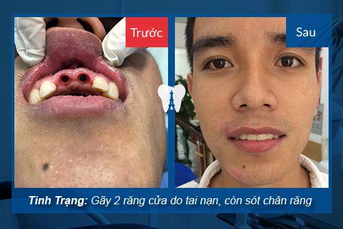 khách hàng làm răng Implant tại nha khoa paris cộng hòa