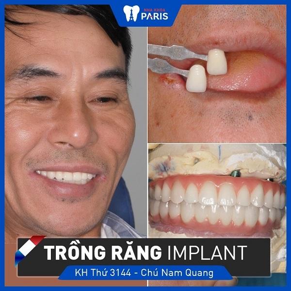 thẩm mỹ răng không lo về giá - nha khoa paris 4