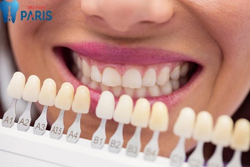bảng màu răng sứ cercon