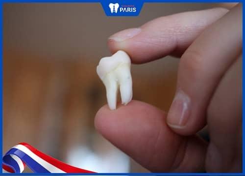 biến chứng sau khi nhổ răng khôn