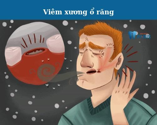 biến chứng sau nhổ răng