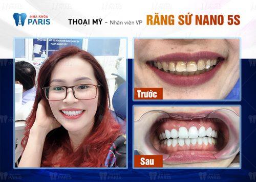 bọc răng có đau không