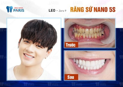 bọc răng có đau ko