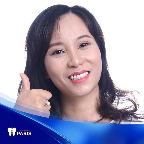 Tại Paris bọc răng sứ cercon có tốt không