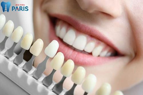 Bọc răng sứ có an toàn không