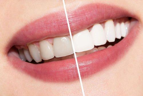 bọc răng sứ không cần mài