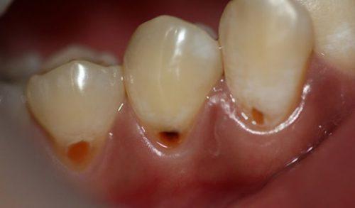 bọc răng sứ không mài giá bao nhiêu