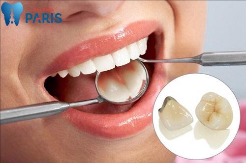 chữa răng vẩu