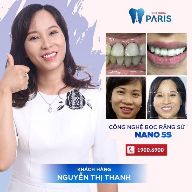 video bọc răng sứ zirconia tại Paris