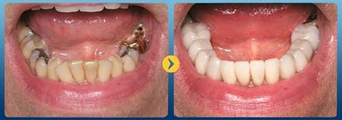 cách chữa răng sâu