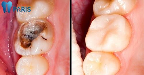 Cách trị răng sâu