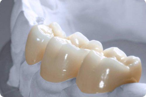 Chụp răng sứ cercon có tốt không