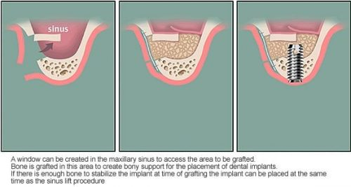 cấy ghép xương nhân tạo