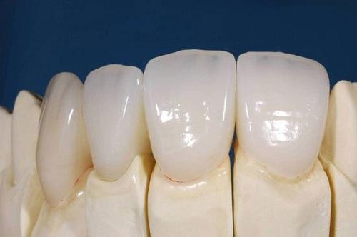 giá răng sứ cercon