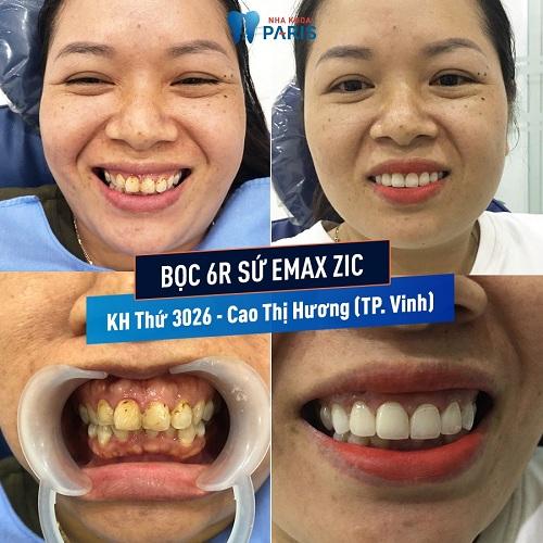 giá răng sứ emax