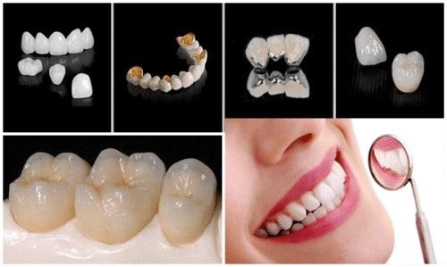giá răng sứ kim loại