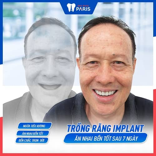 khách hàng trồng implant không hôi miệng