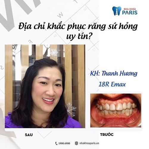 làm răng sứ có hại không