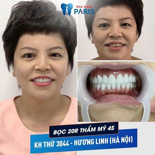 khách hàng làm răng sứ zirconia