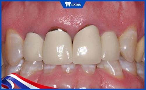 Bác sĩ lắp mão răng không khít khi trồng răng Implant