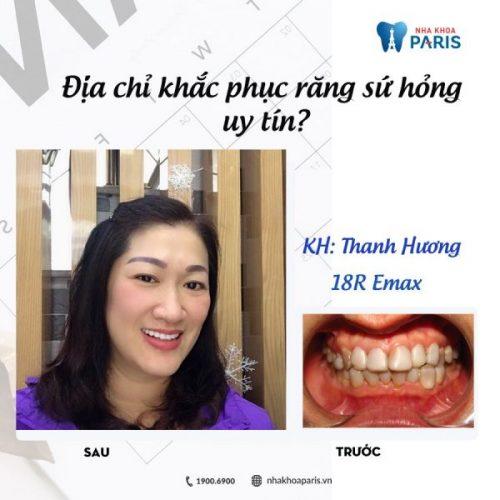 răng sứ bị mẻ có trám được không