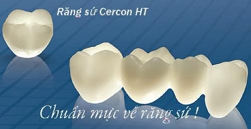 răng sứ cercon giá bao nhiêu